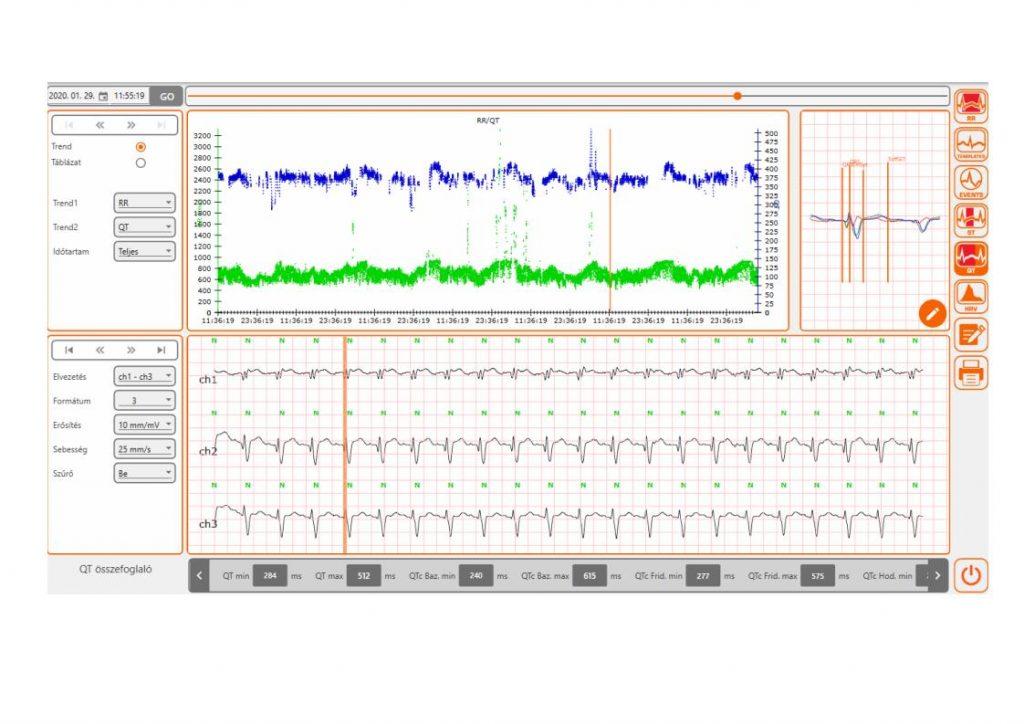 Cardioline_screenshot_05-1-1-1024x724