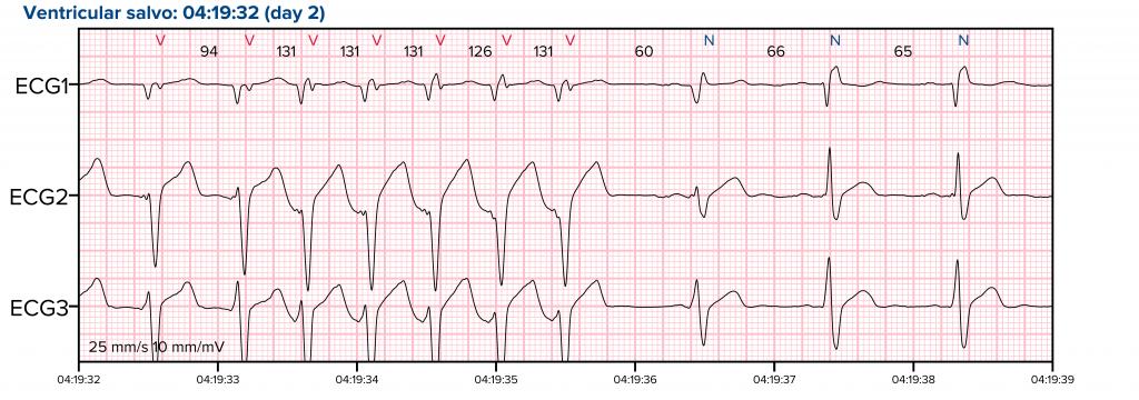 EKG_01-1-1024x360 (1)