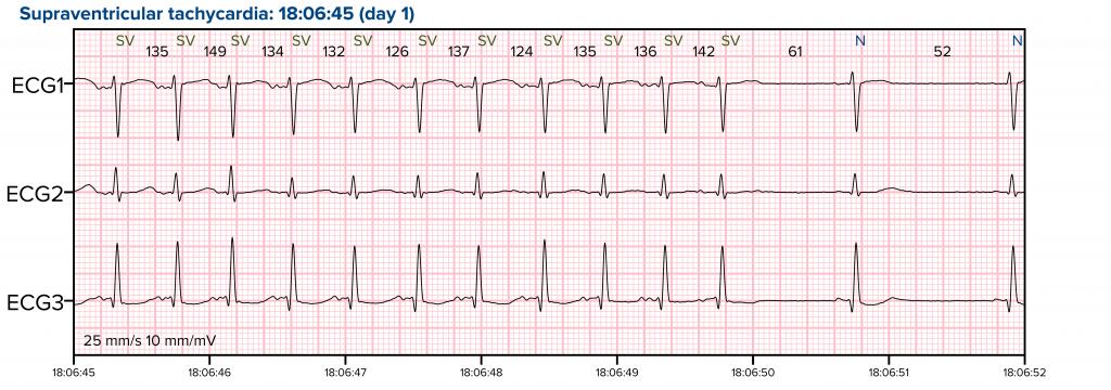 EKG_04-1-1024x360